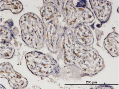 BABP / AKR1C2 Monoclonal Antibody
