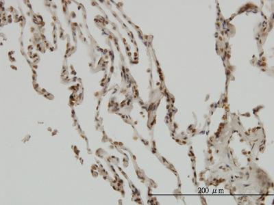 NFKBIB / IKB Beta / IKBB Monoclonal Antibody