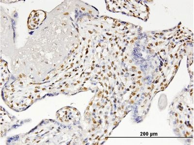 CBFA1 / RUNX2 Monoclonal Antibody