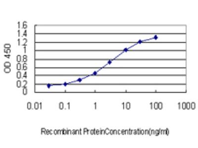 ZMYND8 / RACK7 Monoclonal Antibody