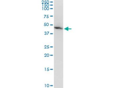 AMBP Monoclonal Antibody