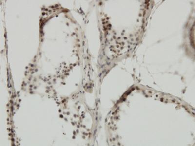 TRIM24 / TIF1 Monoclonal Antibody