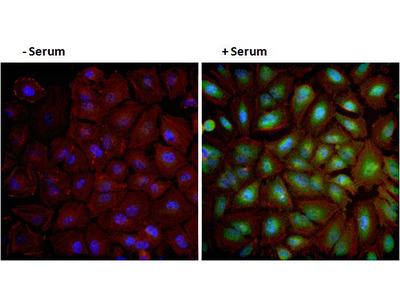 Phospho-AKT1 (Ser473) Monoclonal Antibody (14-6)