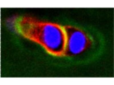 ADAMTS5 Polyclonal Antibody