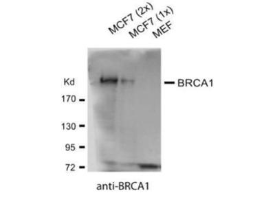 BRCA1 Monoclonal Antibody (17F8)