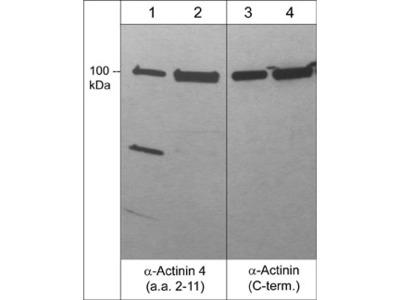 α-Actinin 4 (a.a. 2-11) Antibody