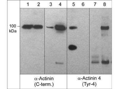 α-Actinin 4 (Tyr-4), phospho-specific Antibody