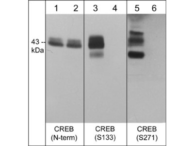 CREB Phospho-Regulation Antibody Sampler Kit