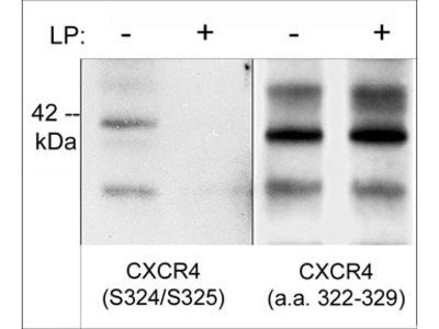 CXCR4 Phospho-Regulation Antibody Sampler Kit