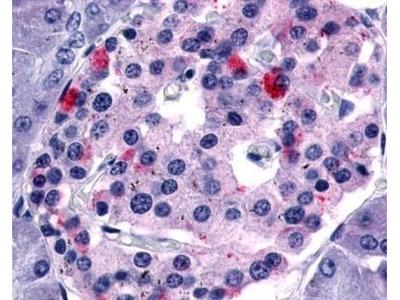 FABP1 Monoclonal Antibody (5B5)