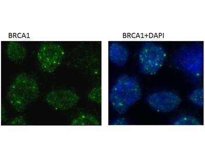 BRCA1 Monoclonal Antibody (6B4)