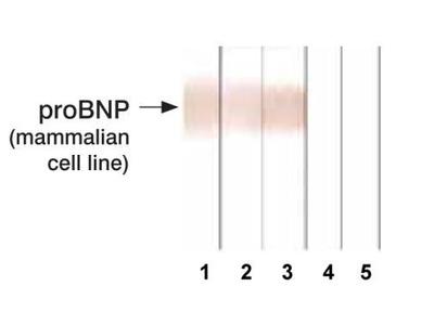 pro-Brain Natriuretic Peptide Monoclonal Antibody (13G12)