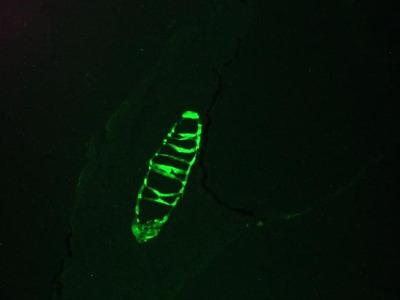 Cytokeratin 13 Monoclonal Antibody (1C7)