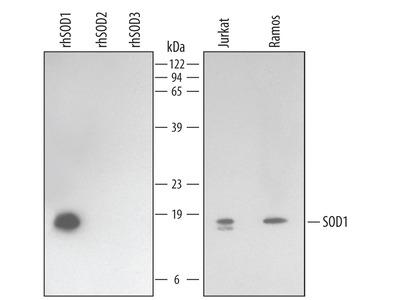 SOD1 / Cu-Zn SOD Antibody