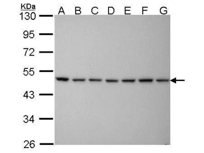 PSMC5 Monoclonal Antibody (25D5)