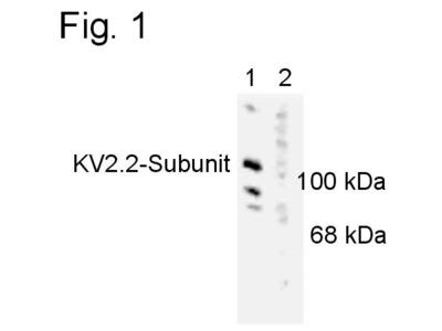KV2.2 (KCNB2) Polyclonal Antibody