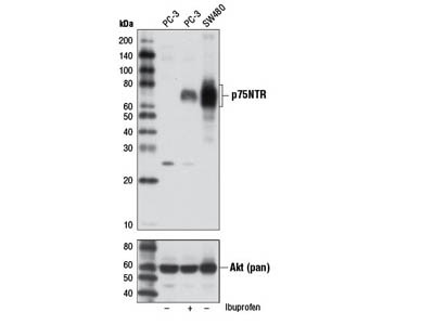 p75NTR (D4B3) XP ® Rabbit mAb
