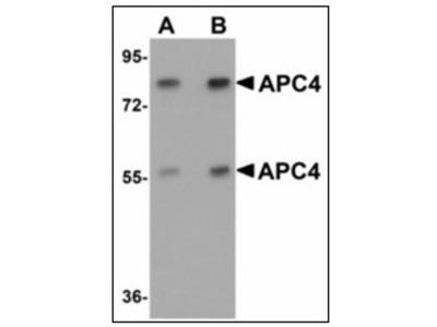anti APC4 / ANAPC4 (N-term)