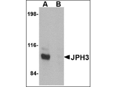 anti Junctophilin-3 / JPH3 (C-term)