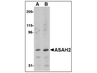 anti Neutral ceramidase / ASAH2 (C-term)