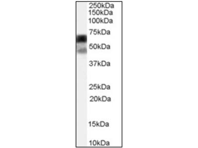 anti P4HA1 (431-443)