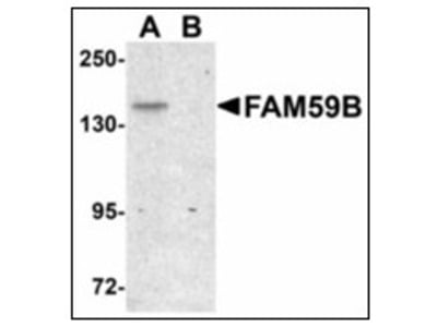 anti GAREML / FAM59B (C-term)