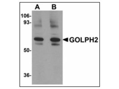 anti Golgi membrane protein 1 / GOLM1