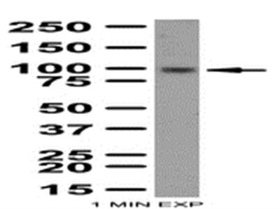Anti-LGR5 (GPR49)