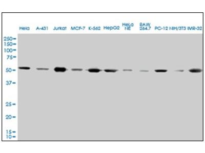 anti alpha Tubulin / TUBA4A / TUBA1