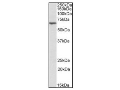anti Anthrax toxin receptor 2 / ANTXR2 (121-133)