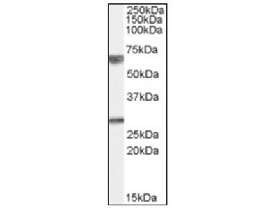 anti GPSM2 (448-462)