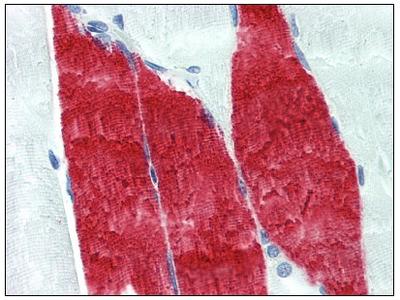 anti Skeletal muscle Troponin I