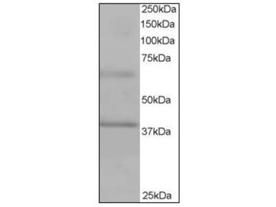 anti ABTB1 (465-478)