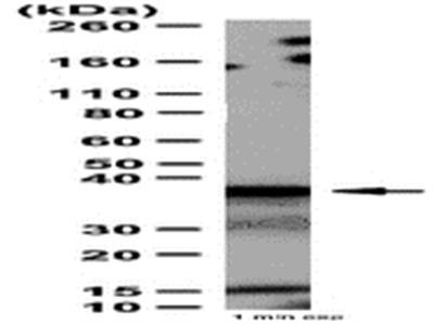 Anti-RAD51 Antibody