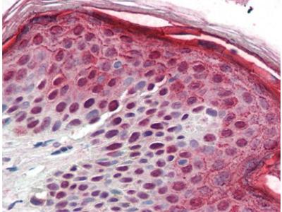 Aurora B (AURKB) (1-344) sheep polyclonal antibody, Purified