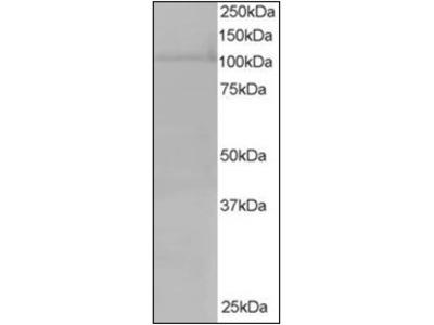 anti XPO7 / Exportin-7 (1075-1087)