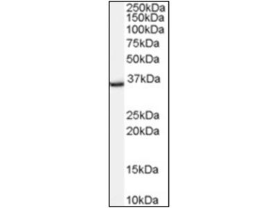 anti TSPO / BZRP (156-169)