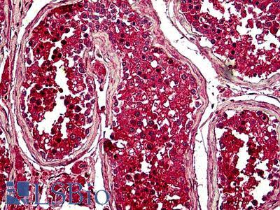 Securin / PTTG1 Antibody
