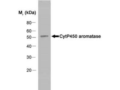 MOUSE ANTI HUMAN CYTOCHROME P450 AROMATASE