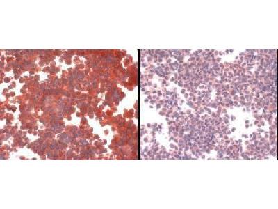 CTR1 Polyclonal Antibody
