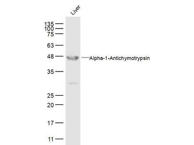 AACT Alpha1 Antibody