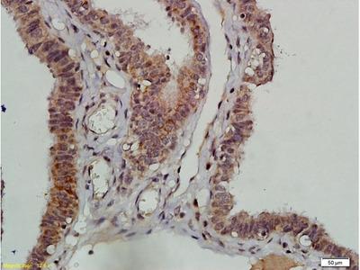 DNAPK/PRKDC Antibody