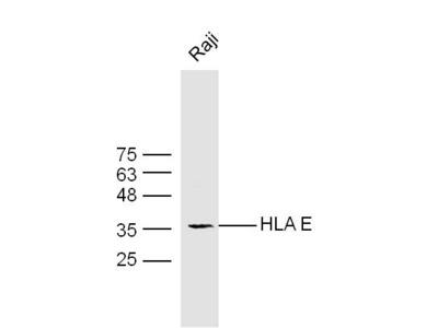 HLA E Antibody