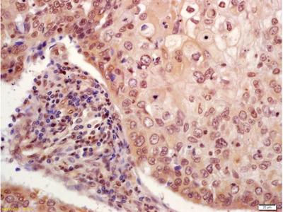 P53(Ser33) Antibody