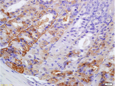 PERK Antibody