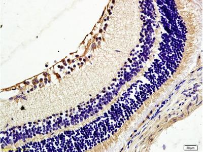 TIE2/CD202b Polyclonal Antibody