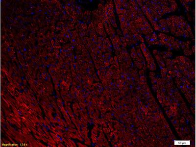 NPY1R Antibody