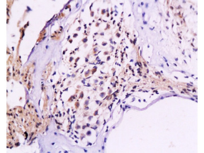NF-M Antibody