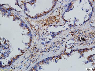 CCL28/MEC Polyclonal Antibody