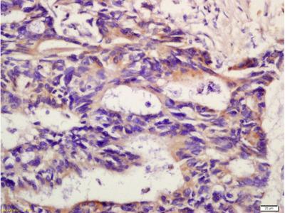 CXCR2/CD182 Polyclonal Antibody